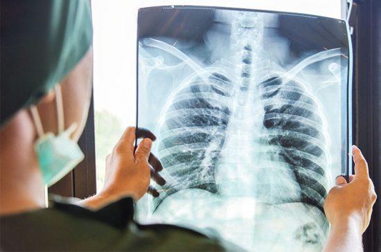 Ciri-ciri Penyakit Flek Paru-paru Dan Cara Mengatasinya